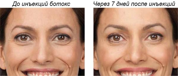Морщины вокруг глаз Сделать лисьи глазки Нити для бровей