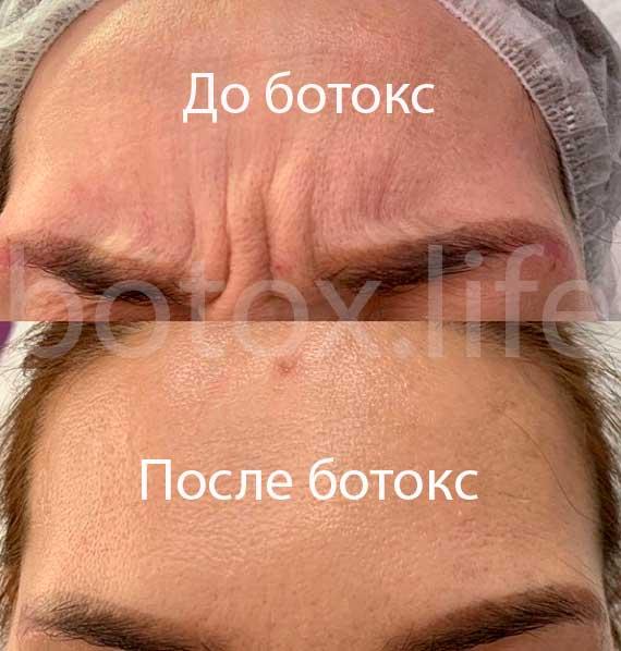 Убрать морщины ботексом Ботокс от головной боли